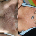 Before and 3 months after 2 treatments