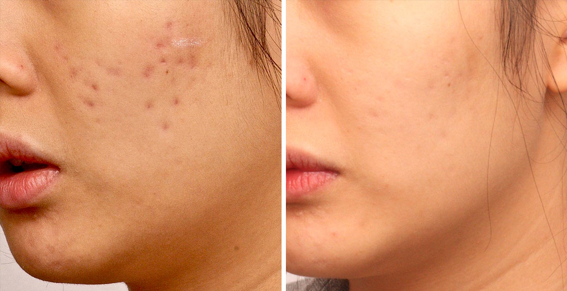before_after_pics_Acne-Scars_DrKim_2