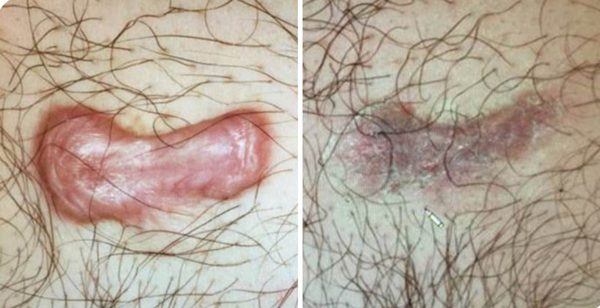 before_after_pics_Keloid-Scars_DrArtzi