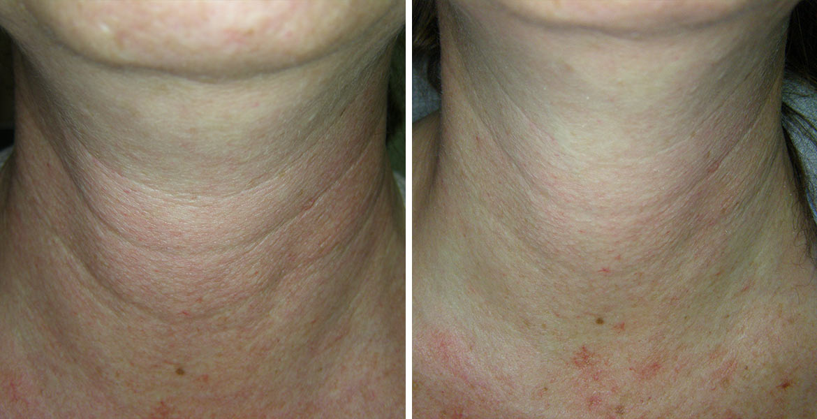 before_after_pics_NeckLines_DrArad